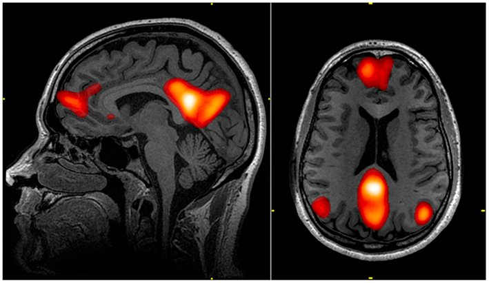 Changes The Brain Even When Not Actively Meditating in5d in 5d in5d.com www.in5d.com //in5d.com/%20body%20mind%20soul%20spirit%20BodyMindSoulSpirit.com%20http://bodymindsoulspirit.com/