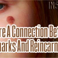 Is There A Connection Between Birthmarks And Reincarnation?